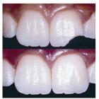 Ön Dişin Çıkması